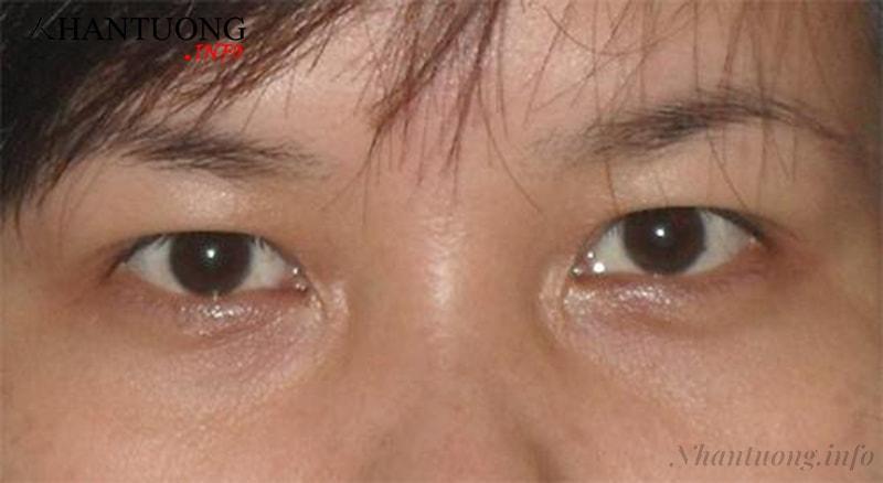 Mắt hõm sâu
