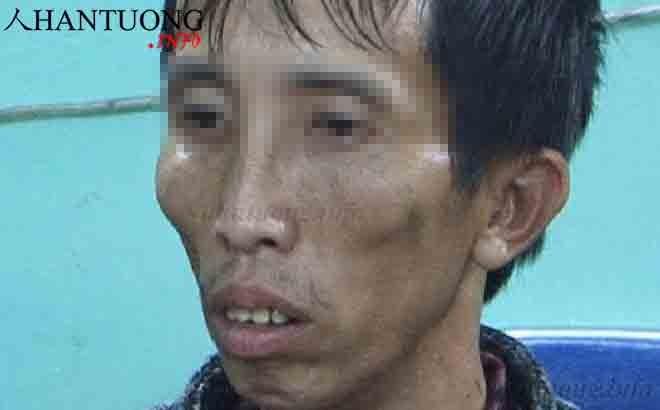 Đối tượng T.V.C giết nữ sinh giao gà ở Điện Biên 2019 có sống mũi lệch, miệng thổi lửa, gò má cao, mắt lồi