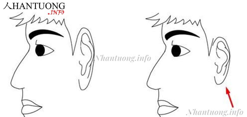 Tai thấp hơn lông mày (hình phải)