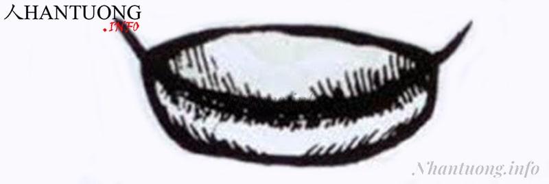 Tướng miệng quai xách - miệng túi vải