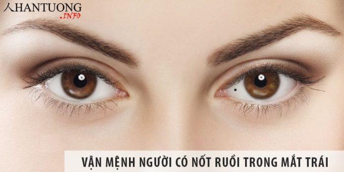 Đàn ông, phụ nữ có nốt ruồi trong mắt trái vận mệnh ra sao?