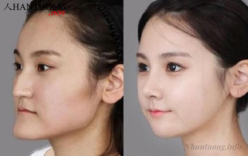 Nhiều người đã thực hiện phẫu thuật chỉnh hình và có khuôn mặt đẹp hơn rất nhiều